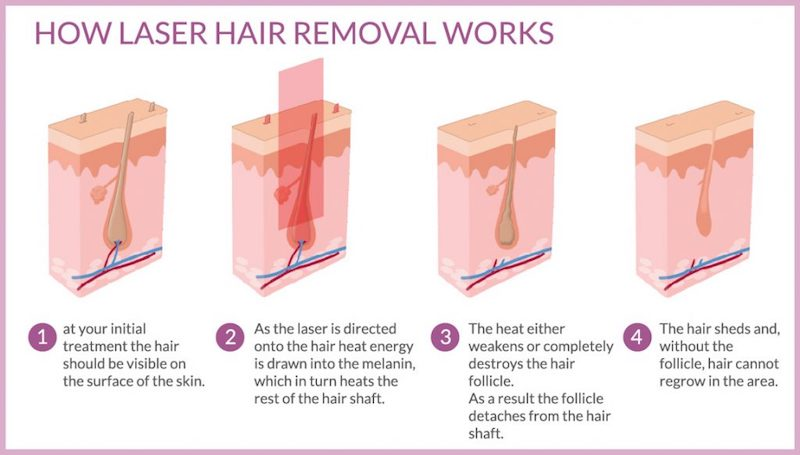 laser hair removal2
